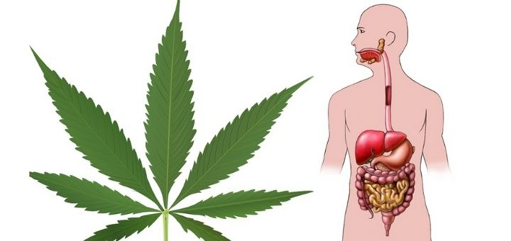 Bowel Disease With Cannabis